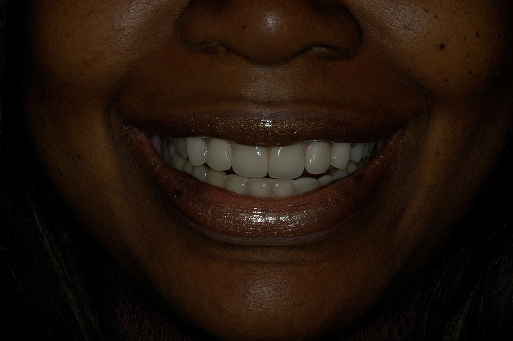 plano tx smile makeover porcelain crowns